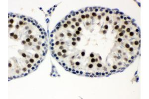 Image no. 2 for anti-Menage A Trois Homolog 1, Cyclin H Assembly Factor (Xenopus Laevis) (MNAT1) (AA 92-278) antibody (ABIN3043583)