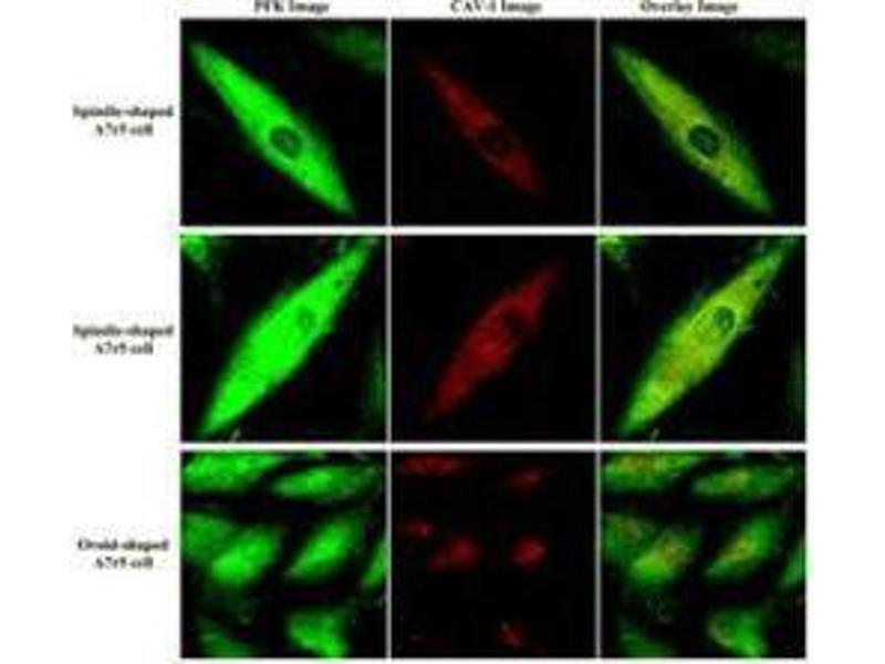 Image no. 1 for anti-Fructose-6-Phosphate Kinase antibody (ABIN99444)