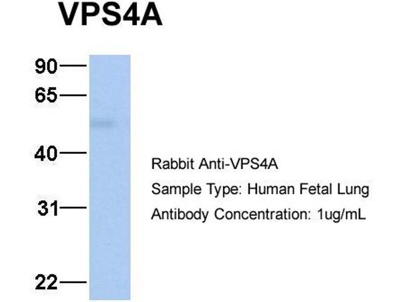 Western Blotting (WB) image for anti-VPS4A antibody (Vacuolar Protein Sorting 4 Homolog A (S. Cerevisiae)) (N-Term) (ABIN2785950)
