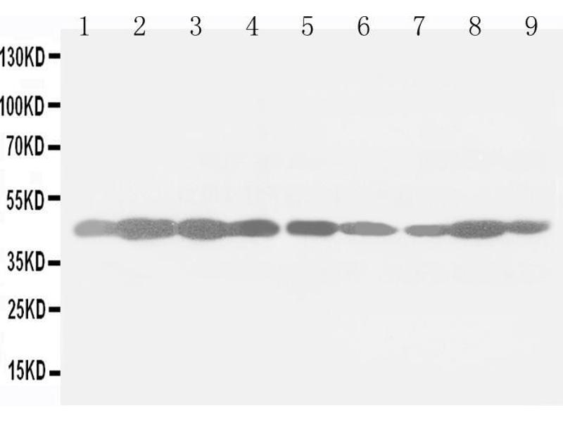 Western Blotting (WB) image for anti-Actin, beta (ACTB) (Cytosolic), (N-Term) antibody (ABIN3044484)