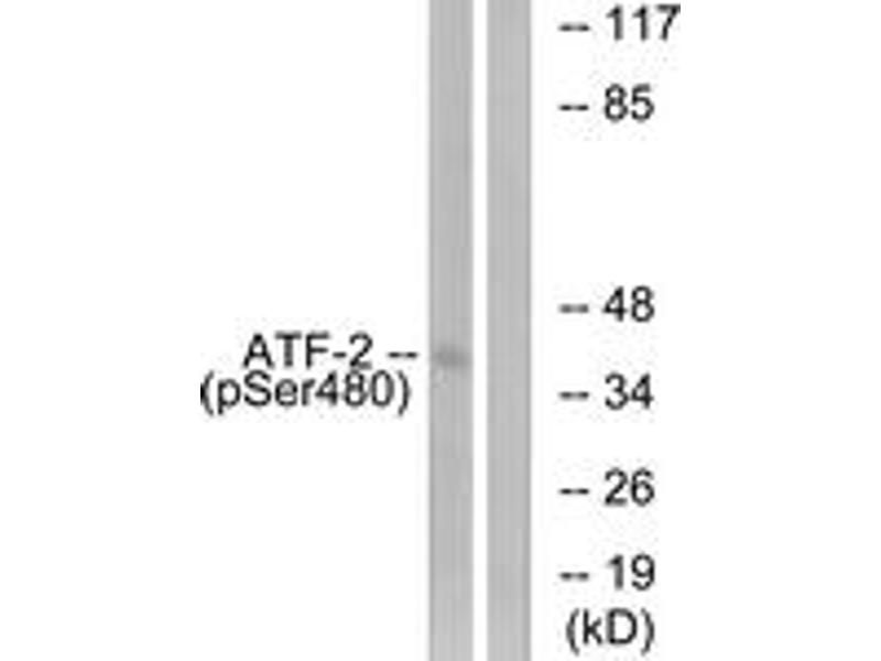Western Blotting (WB) image for anti-ATF2 antibody (Activating Transcription Factor 2) (pSer480) (ABIN1531522)