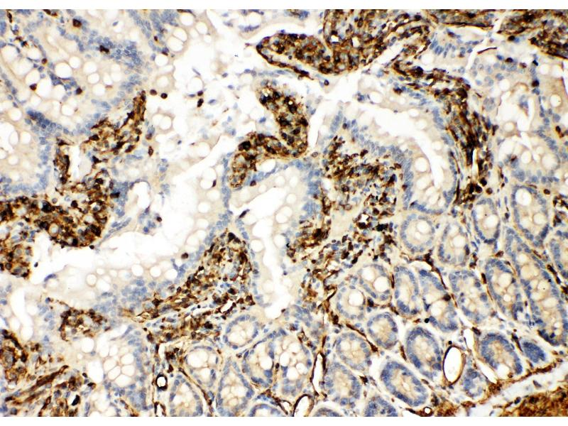 Immunohistochemistry (IHC) image for anti-TRAF6 antibody (TNF Receptor-Associated Factor 6) (AA 145-160) (ABIN3044469)