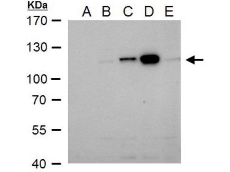 Western Blotting (WB) image for anti-V-Raf-1 Murine Leukemia Viral Oncogene Homolog 1 (RAF1) antibody (ABIN4235572)