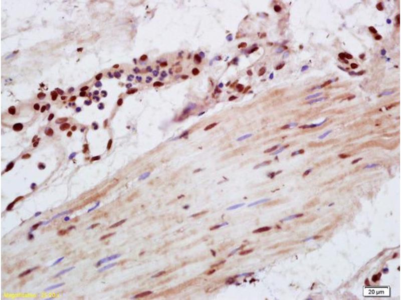 Immunohistochemistry (IHC) image for anti-Vav 1 Oncogene (VAV1) (AA 150-165), (pTyr160) antibody (ABIN711866)