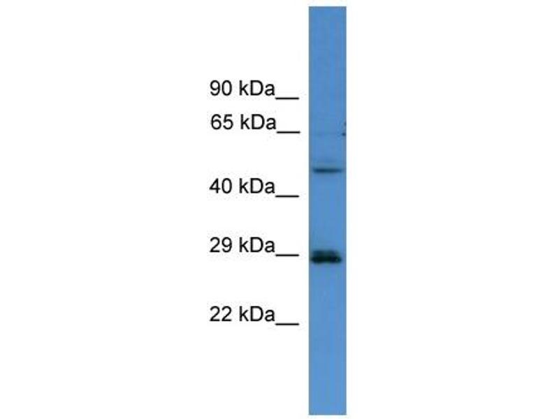 Western Blotting (WB) image for anti-Sepiapterin Reductase (SPR) (C-Term) antibody (ABIN2788144)