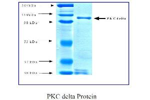 SDS-PAGE (SDS) image for Protein Kinase C, delta (PKCd) (Active) protein (ABIN411946)