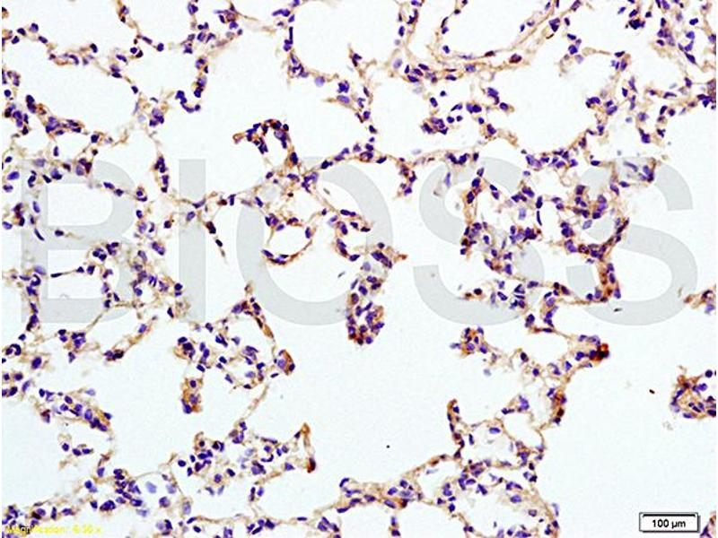 Immunohistochemistry (IHC) image for anti-IL12RB2 antibody (Interleukin 12 Receptor, beta 2) (AA 335-385) (ABIN747878)