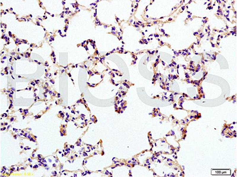 Immunohistochemistry (IHC) image for anti-Interleukin 12 Receptor, beta 2 (IL12RB2) (AA 335-385) antibody (ABIN747878)