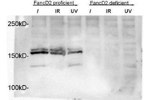 Western Blotting (WB) image for anti-FANCD2 antibody (Fanconi Anemia, Complementation Group D2) (N-Term) (ABIN151329)