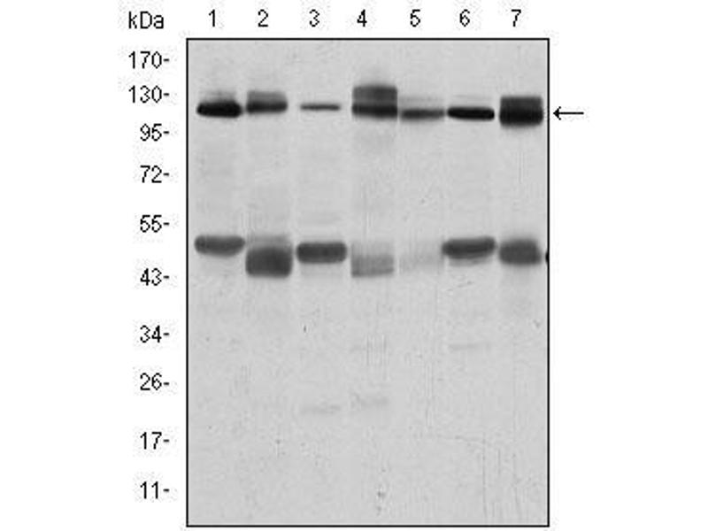 Western Blotting (WB) image for anti-Cas-Br-M (Murine) Ecotropic Retroviral Transforming Sequence (CBL) antibody (ABIN4880224)