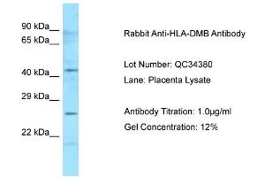 Image no. 2 for anti-Major Histocompatibility Complex, Class II, DM beta (HLA-DMB) (N-Term) antibody (ABIN2789474)