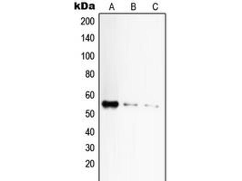 Western Blotting (WB) image for anti-TNFRSF1A antibody (Tumor Necrosis Factor Receptor Superfamily, Member 1A) (C-Term) (ABIN2704588)