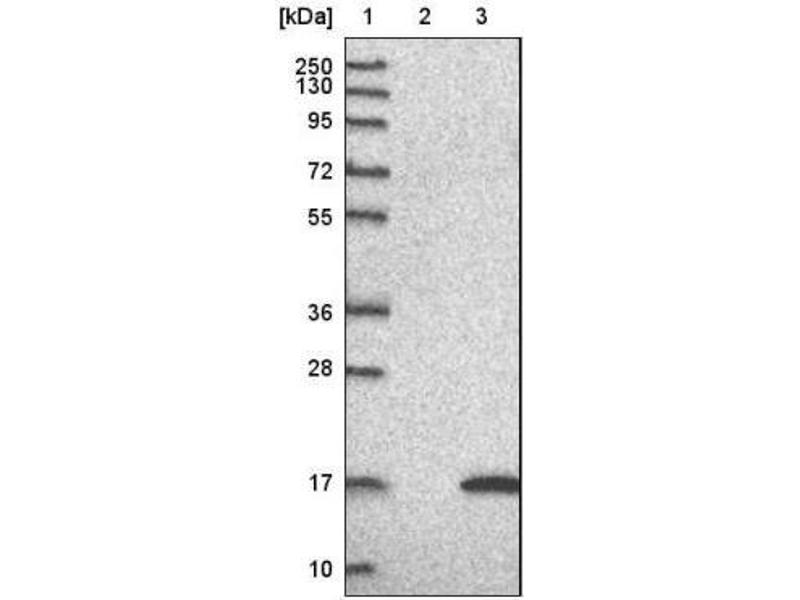 Western Blotting (WB) image for anti-LSM5 Homolog, U6 Small Nuclear RNA Associated (S. Cerevisiae) (LSM5) antibody (ABIN4331773)