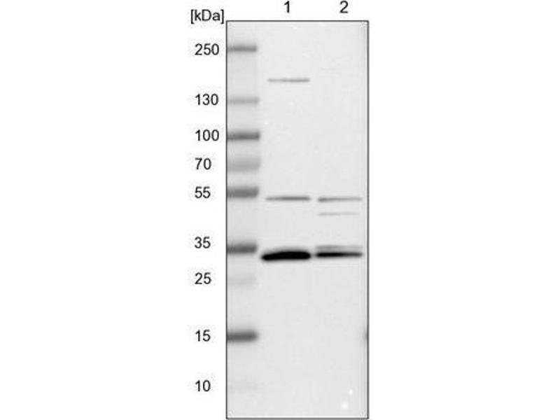 Image no. 2 for anti-Apolipoprotein O-Like (APOOL) antibody (ABIN4281245)