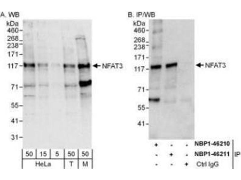 Western Blotting (WB) image for anti-Nuclear Factor of Activated T-Cells, Cytoplasmic, Calcineurin-Dependent 4 (NFATC4) (AA 300-350) antibody (ABIN4339313)