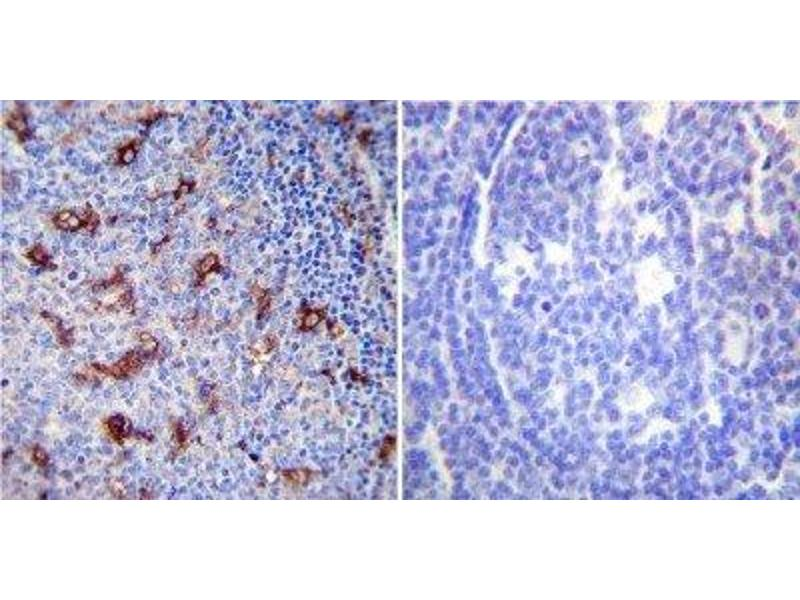 Immunohistochemistry (Paraffin-embedded Sections) (IHC (p)) image for anti-ATPase, Ca++ Transporting, Cardiac Muscle, Slow Twitch 2 (ATP2A2) antibody (ABIN152688)