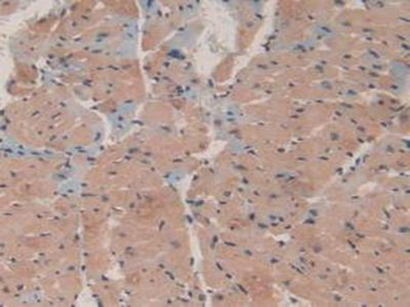 Immunohistochemistry (IHC) image for anti-Microtubule-Associated Protein 1A (MAP1A) (AA 2552-2759) antibody (ABIN1869074)