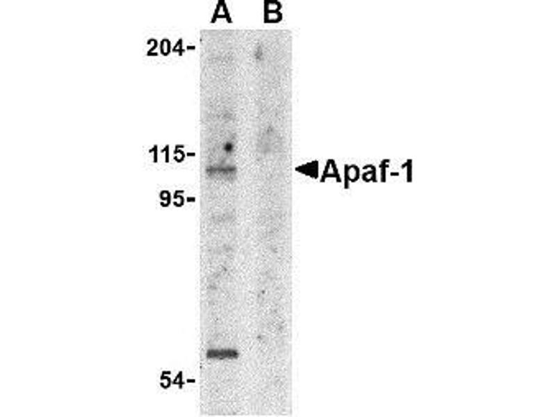 Western Blotting (WB) image for anti-APAF1 antibody (Apoptotic Peptidase Activating Factor 1) (N-Term) (ABIN499287)