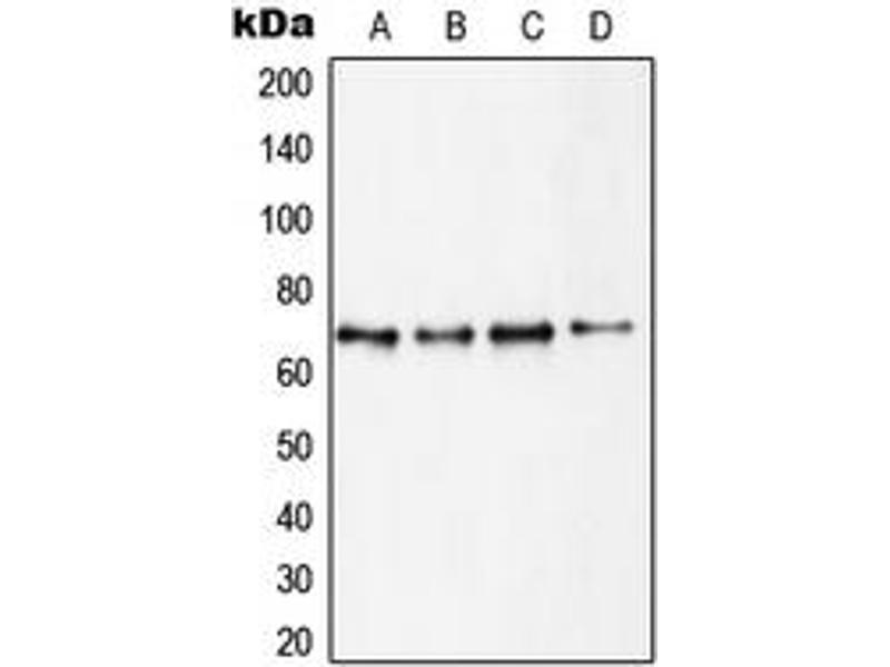 Western Blotting (WB) image for anti-Ribosomal Protein S6 Kinase, 70kDa, Polypeptide 1 (RPS6KB1) (C-Term) antibody (ABIN2705218)
