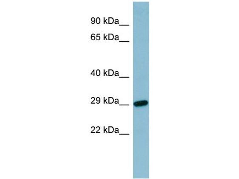 Western Blotting (WB) image for anti-Retinol Binding Protein 4, Plasma (RBP4) (N-Term) antibody (ABIN2776889)