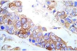 Immunohistochemistry (Paraffin-embedded Sections) (IHC (p)) image for anti-FYN antibody (FYN Oncogene Related To SRC, FGR, YES) (pTyr530) (ABIN498840)