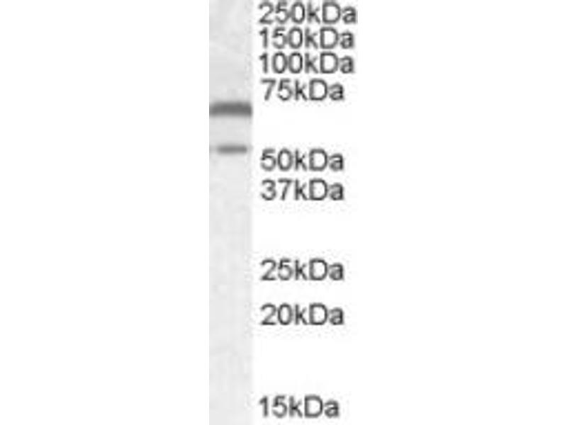 image for anti-CAMK2A antibody (Calcium/calmodulin-Dependent Protein Kinase II alpha) (Internal Region) (ABIN452427)