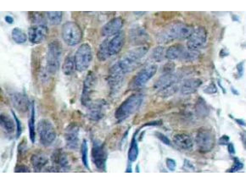 Immunohistochemistry (Paraffin-embedded Sections) (IHC (p)) image for anti-CTNNB1 antibody (Catenin (Cadherin-Associated Protein), beta 1, 88kDa) (pSer33) (ABIN498724)