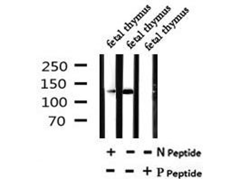 Image no. 2 for anti-Splicing Factor 3b, Subunit 1, 155kDa (SF3B1) (pThr211) antibody (ABIN6269723)