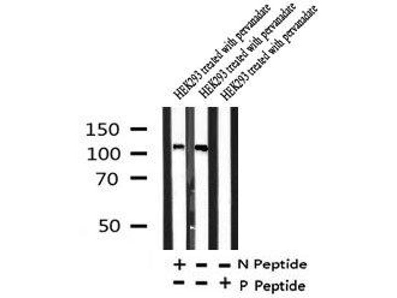 Image no. 2 for anti-EPH Receptor A3 (EPHA3) (pTyr779) antibody (ABIN6269985)
