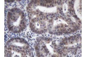 image for anti-Adrenocortical Dysplasia Homolog (Mouse) (ACD) antibody (ABIN1496406)