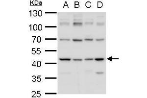 Image no. 4 for anti-Isocitrate Dehydrogenase 1 (NADP+), Soluble (IDH1) (Center) antibody (ABIN2856056)