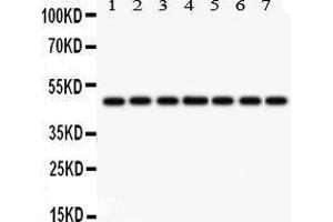 Image no. 4 for anti-Isocitrate Dehydrogenase 1 (NADP+), Soluble (IDH1) (AA 381-413), (C-Term) antibody (ABIN3043855)
