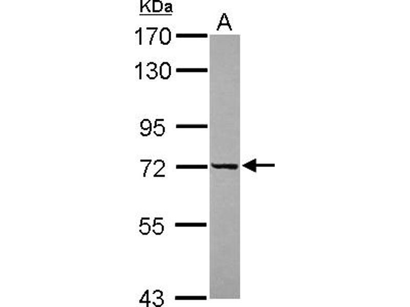 Western Blotting (WB) image for anti-DEAD (Asp-Glu-Ala-Asp) Box Polypeptide 43 (DDX43) (AA 1-235) antibody (ABIN558396)
