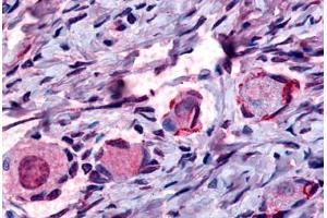 Immunohistochemistry (Paraffin-embedded Sections) (IHC (p)) image for anti-Nuclear Receptor Subfamily 4, Group A, Member 1 (NR4A1) (Internal Region) antibody (ABIN213397)