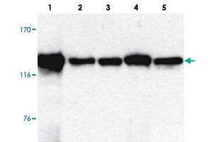 Image no. 2 for anti-Signal-Induced Proliferation-Associated 1 (SIPA1) antibody (ABIN5587935)