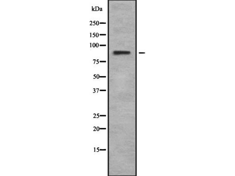 Western Blotting (WB) image for anti-Ribosomal Protein S6 Kinase, 90kDa, Polypeptide 6 (RPS6KA6) antibody (ABIN6264872)