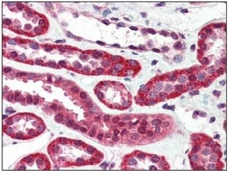 Immunohistochemistry (IHC) image for anti-IGF1R antibody (Insulin-Like Growth Factor 1 Receptor) (AA 1264-1367) (ABIN614475)