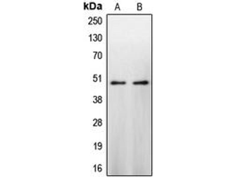 Western Blotting (WB) image for anti-Caspase 9 antibody (Caspase 9, Apoptosis-Related Cysteine Peptidase) (Center) (ABIN2705695)