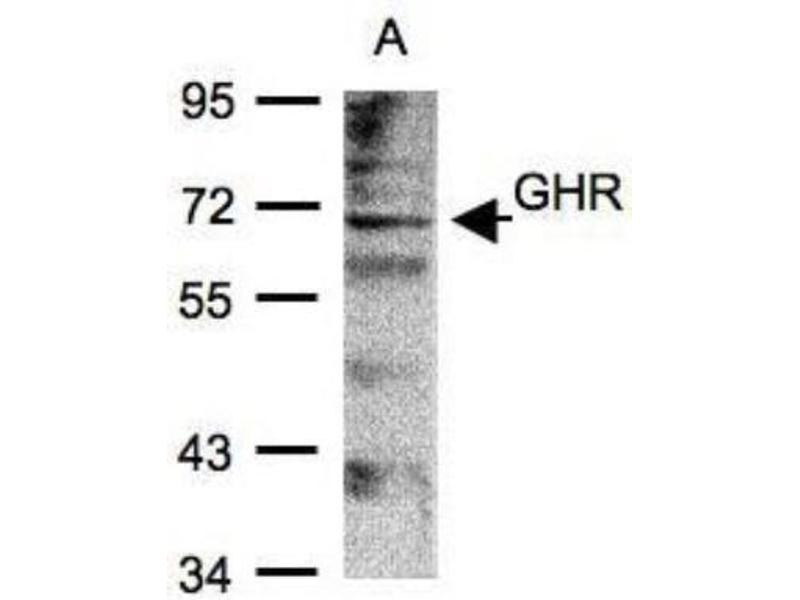 Western Blotting (WB) image for anti-Growth Hormone Receptor (GHR) (Center) antibody (ABIN441424)