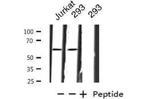 Image no. 1 for anti-Zinc Finger Protein 695 (ZNF695) antibody (ABIN6257576)