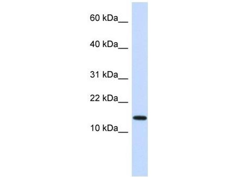 Western Blotting (WB) image for anti-Non-Metastatic Cells 1, Protein (NM23A) Expressed in (NME1) (N-Term) antibody (ABIN926849)