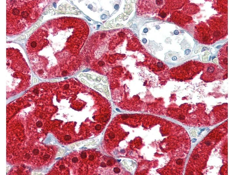 Immunohistochemistry (IHC) image for anti-Argininosuccinate Synthase 1 (ASS1) (AA 196-212) antibody (ABIN489997)
