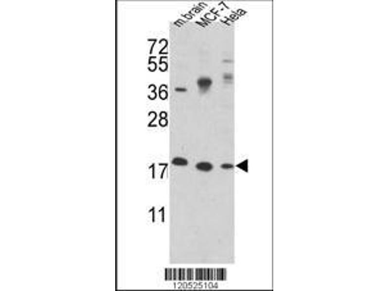 Western Blotting (WB) image for anti-Cofilin 1 (Non-Muscle) (CFL1) (AA 4-32), (N-Term) antibody (ABIN389443)
