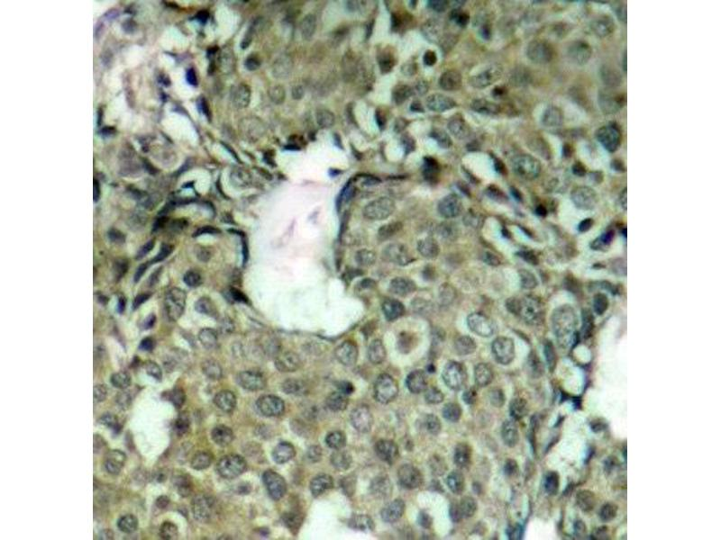 Immunohistochemistry (IHC) image for anti-MAP2K1 antibody (Mitogen-Activated Protein Kinase Kinase 1) (pSer221) (ABIN1870339)