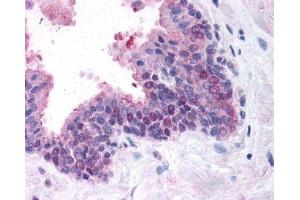 Immunohistochemistry (IHC) image for anti-FANCD2 antibody (Fanconi Anemia, Complementation Group D2) (N-Term) (ABIN151329)