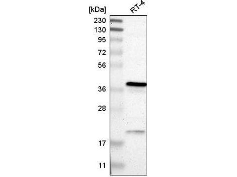 Western Blotting (WB) image for anti-Retinitis Pigmentosa 2 (X-Linked Recessive) (RP2) antibody (ABIN5079384)