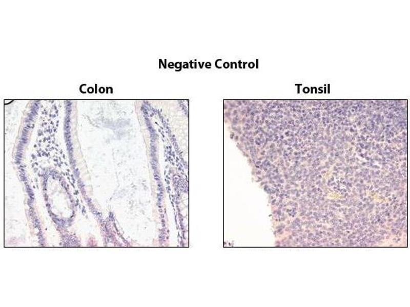 Immunohistochemistry (IHC) image for anti-TNFRSF10B antibody (Tumor Necrosis Factor Receptor Superfamily, Member 10b) (ABIN1169244)