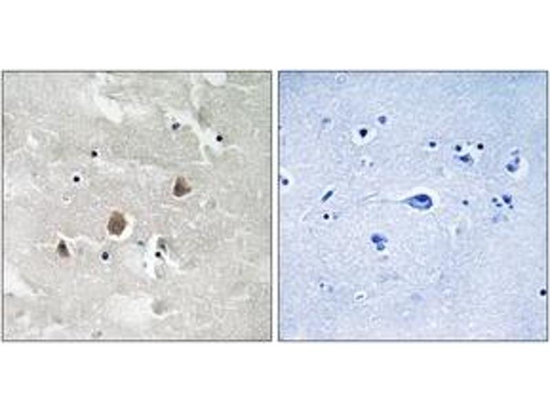Immunohistochemistry (IHC) image for anti-MAP3K1 antibody (Mitogen-Activated Protein Kinase Kinase Kinase 1) (pThr1402) (ABIN1532054)