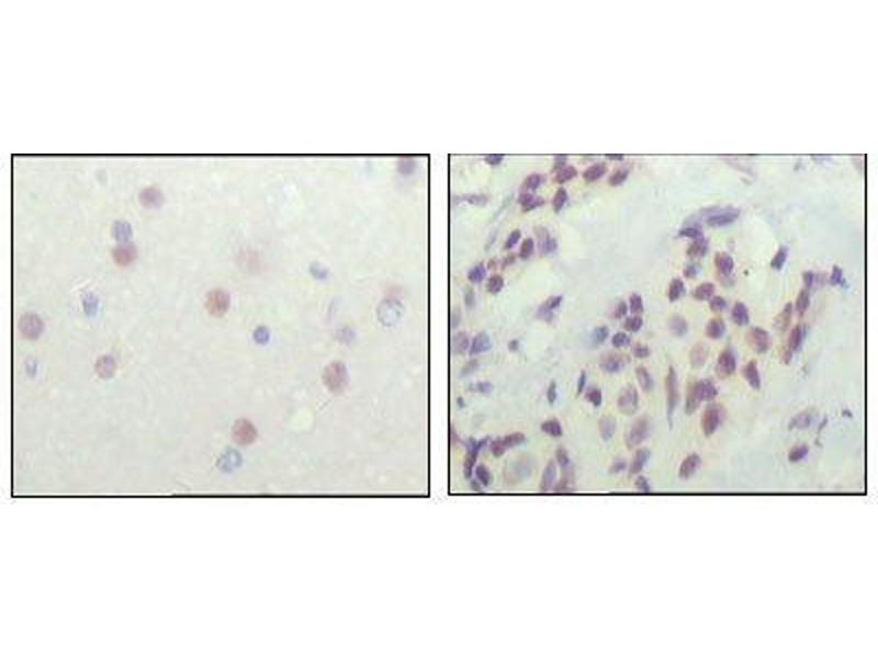 Immunohistochemistry (IHC) image for anti-NCOR1 antibody (Nuclear Receptor Co-Repressor 1) (AA 1-192) (ABIN969310)