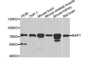 Image no. 1 for anti-BRCA1 Associated Protein-1 (Ubiquitin Carboxy-terminal Hydrolase) (BAP1) antibody (ABIN6137447)
